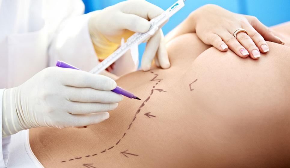 dott-vincenzo-minieri-chirurgoplastico-napoli-medicina-estetica-addominoplastica