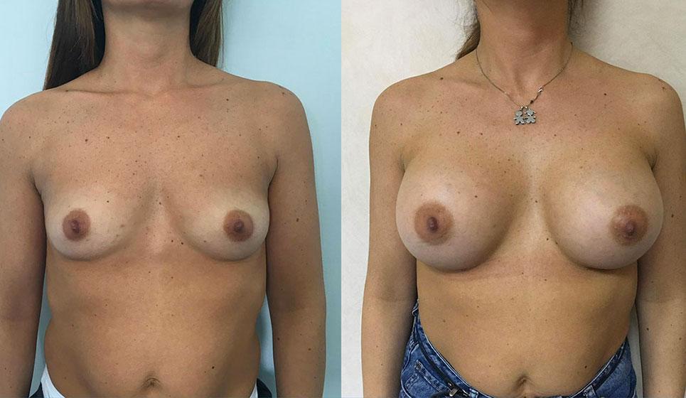 dott-vincenzo-minieri-chirurgoplastico-napoli-medicina-estetica-mastoplastica-additiva-03