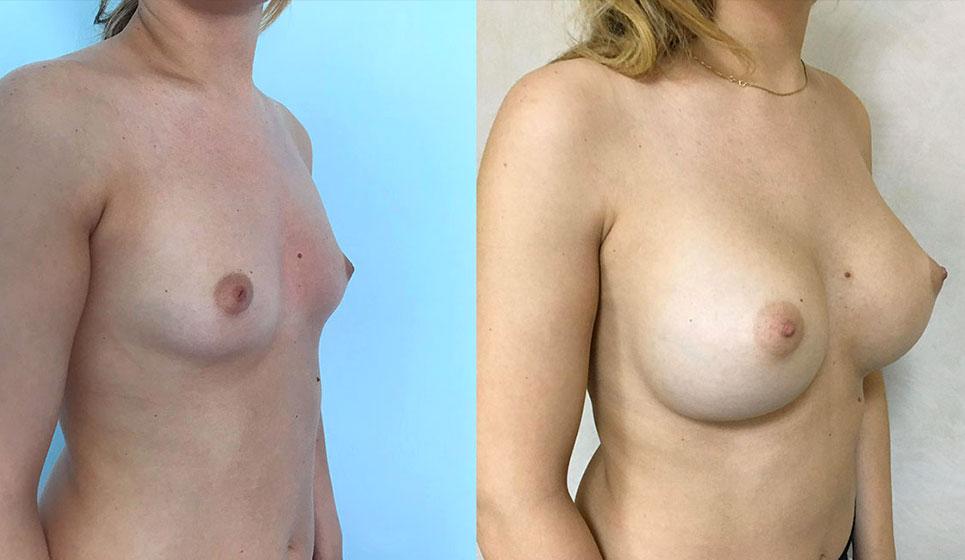 dott-vincenzo-minieri-chirurgoplastico-napoli-medicina-estetica-mastoplastica-additiva
