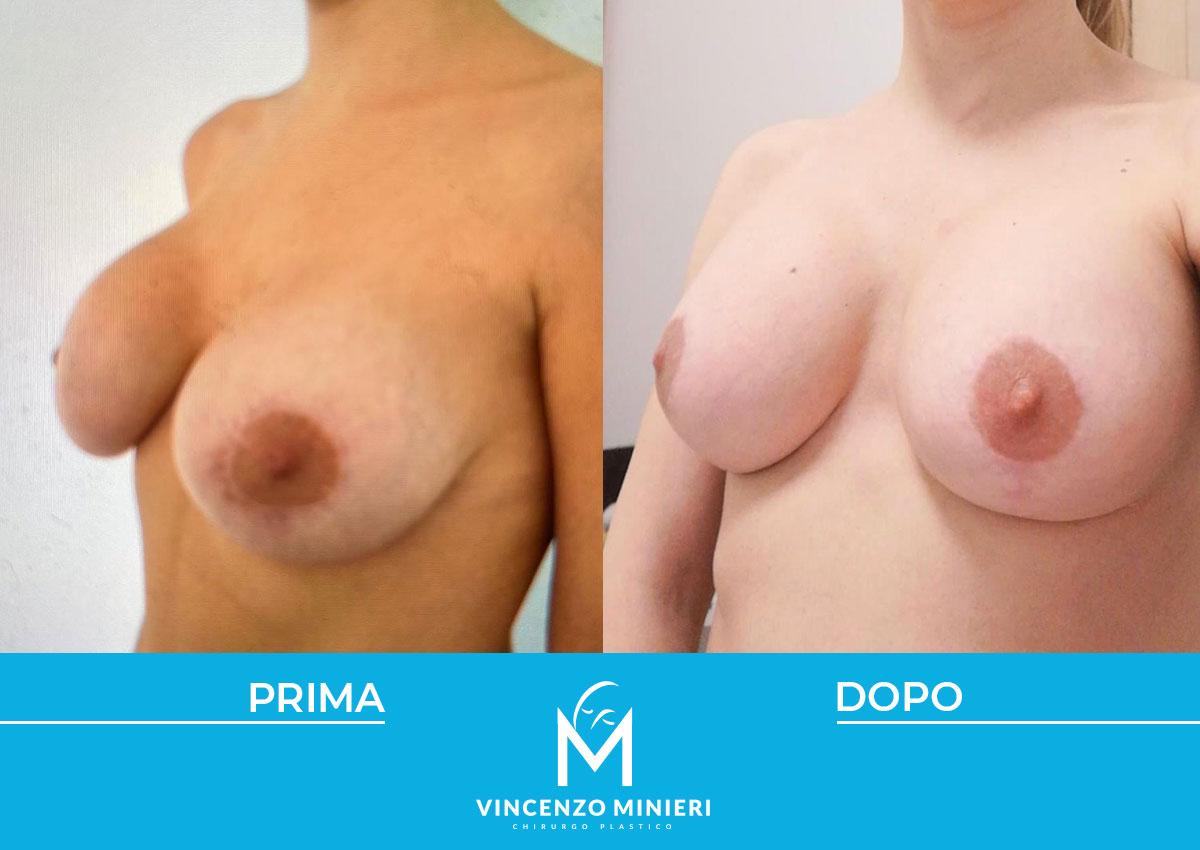 dott-vincenzo-minieri-chirurgo-plastico-chirurgia-estetica-e-ricostruttiva-napoli-casi-clinici-prima-e-dopo-mastopessi