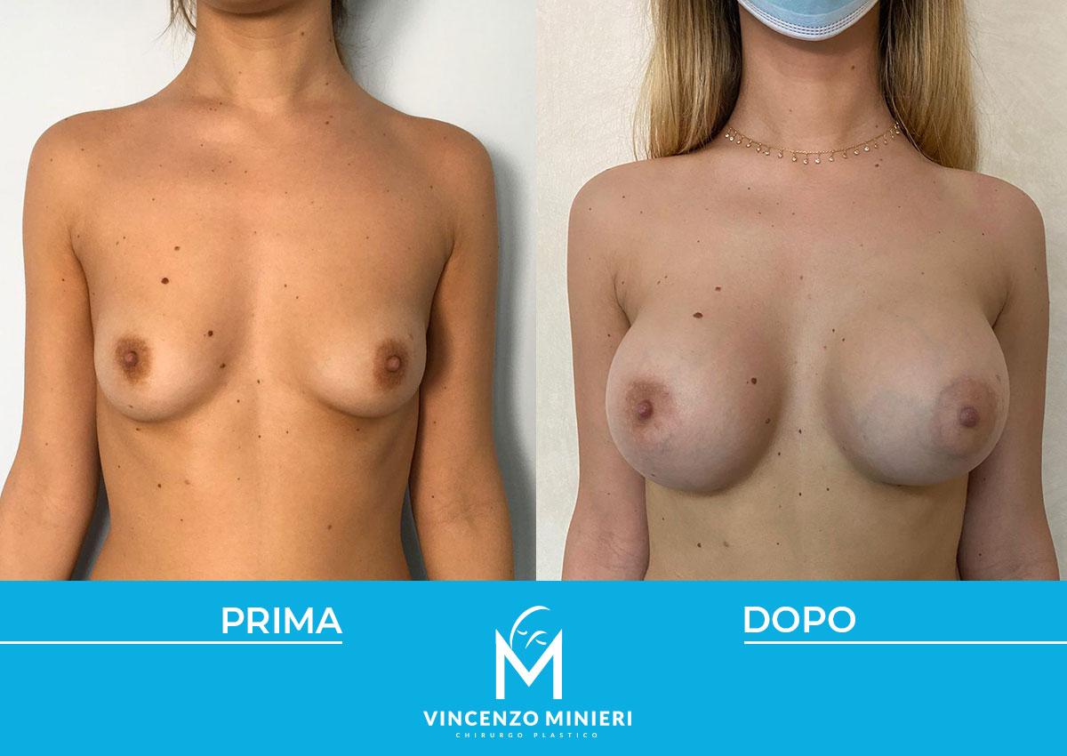 dott-vincenzo-minieri-chirurgo-plastico-chirurgia-estetica-e-ricostruttiva-napoli-casi-clinici-prima-e-dopo-mastoplastica-02