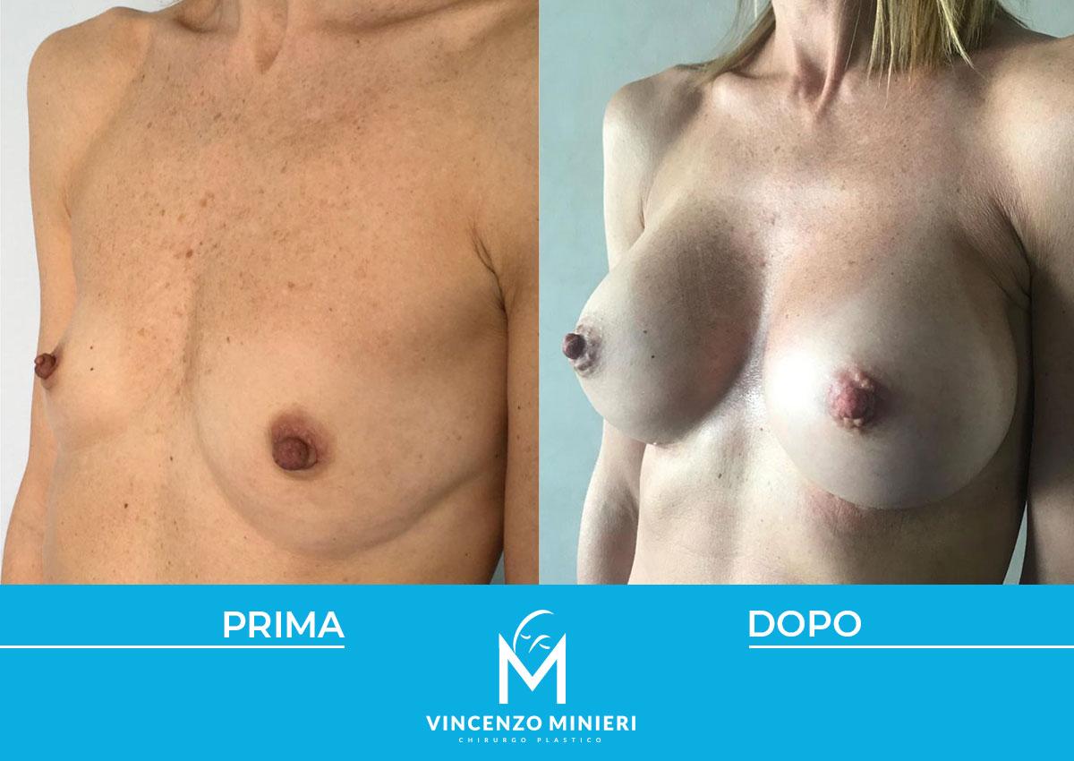dott-vincenzo-minieri-chirurgo-plastico-chirurgia-estetica-e-ricostruttiva-napoli-casi-clinici-prima-e-dopo-mastoplastica-04