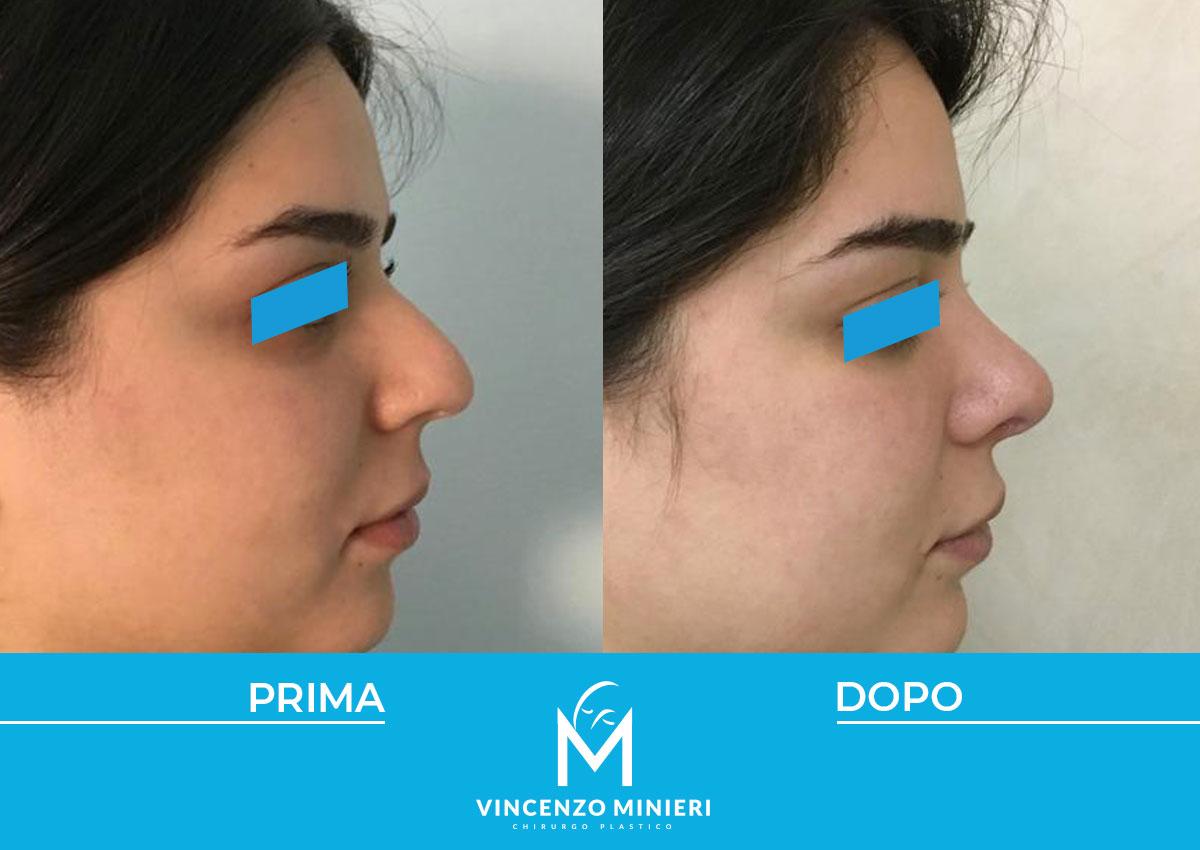 dott-vincenzo-minieri-chirurgo-plastico-chirurgia-estetica-e-ricostruttiva-napoli-casi-clinici-prima-e-dopo-rinoplastica-04